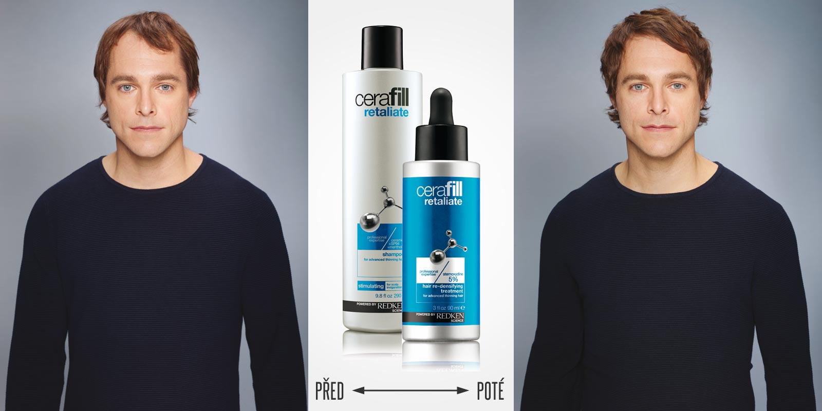 Cerafill pomáhá proti řídnutí vlasů. Před a po používání Cerafill Retaliate spolu s úpravou střihu, barvy a stylingu.
