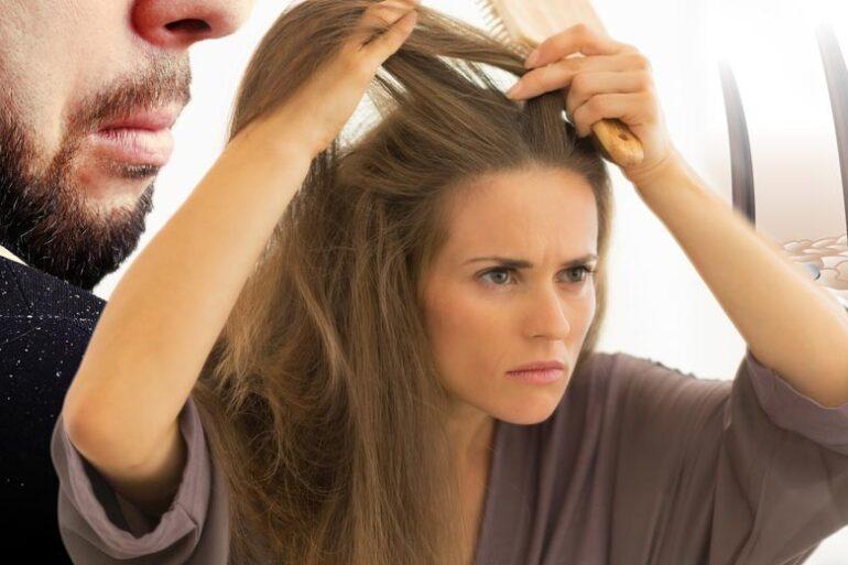 Trápí vás lupy? Přečtěte si, jaké jsou nejčastější příčiny lupů a jak se jich zbavit. Máme pro vás také tipy na účinné šampony proti lupům.
