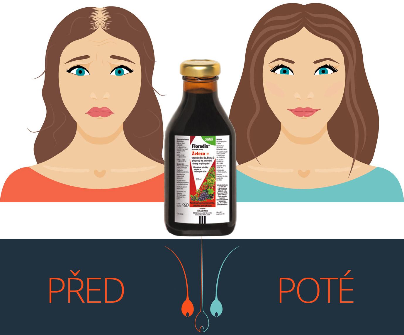 Nedostatek železa výrazně ovlivňuje kvalitu a množství našich vlasů. Může vést až k alopecii. Řešením je prevence. K potravinám bohatým na železo přidejte navíc doplněk stravy – tekuté železo Floradix.
