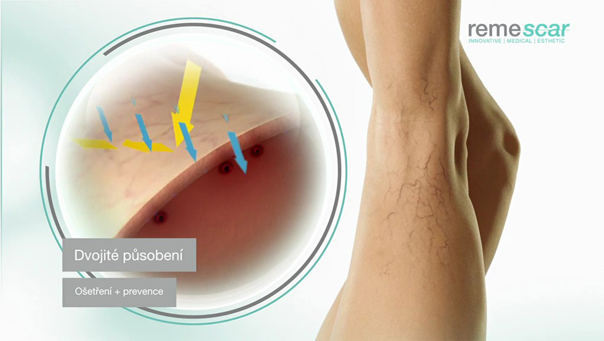 Metličkové žilky jsou zejména kosmetický problém. Řeší jej krém na Remescar, který nabízí jak ošetření stávajícího problému, tak prevenci v budoucnu proti vzniku nových.