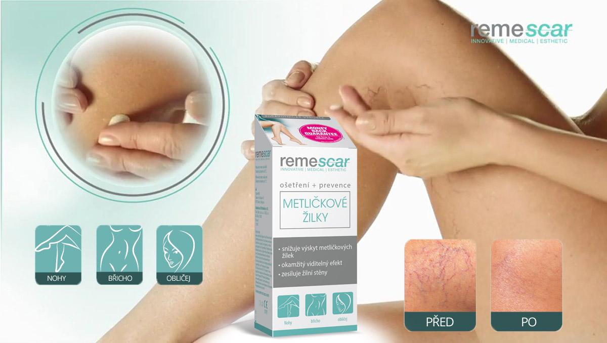 Krém na metličkové žilky Remescar se hodí pro použití na nohy, břicho i obličej.