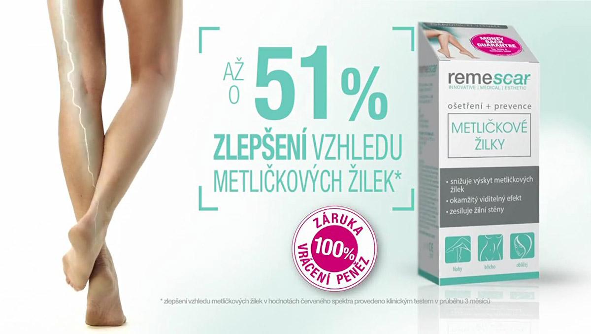 Remescar dokáže problém s metličkovými žilkami zlepšit až o 51 %.