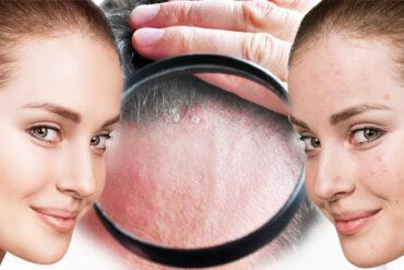 Poradíme vám, jak se zbavit akné ve vlasech, které prostředky zabírají, jak jej léčit, ošetřovat pokožku i vlasy a předcházet jeho vzniku.