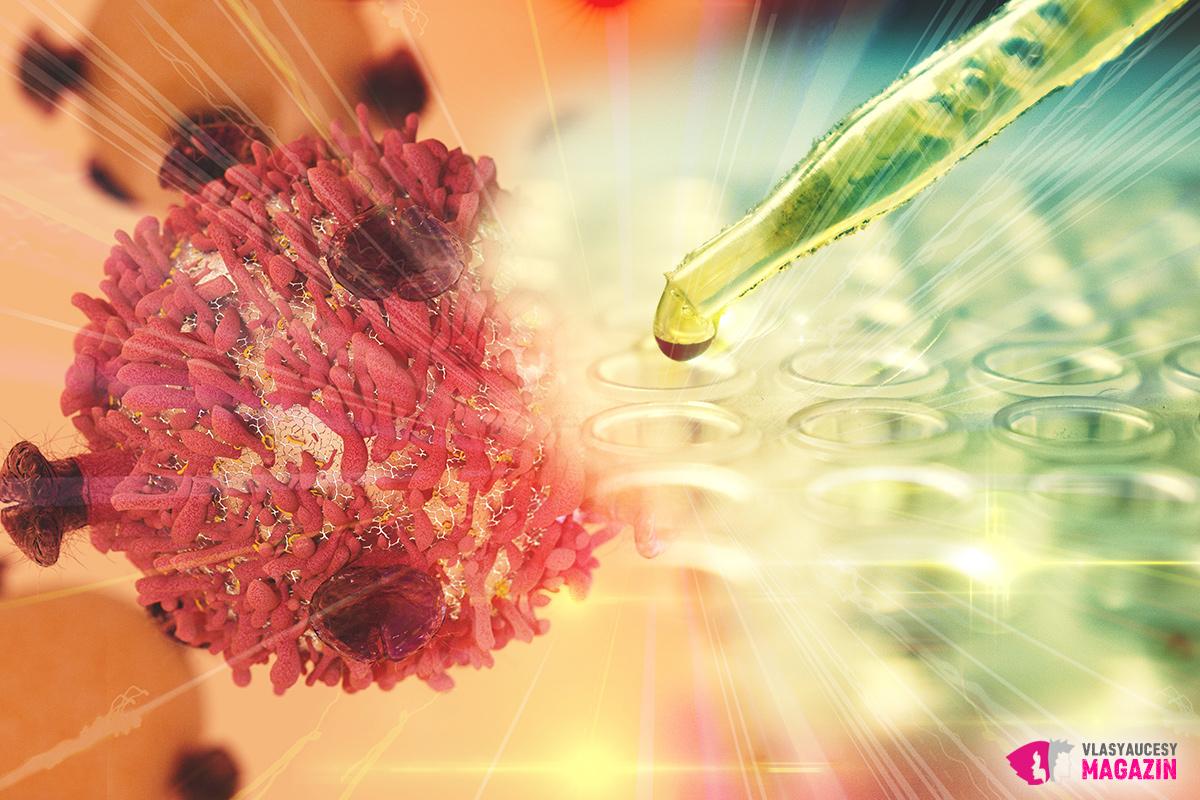 Imunoterapie používaná při léčbě rakoviny stojí nejspíš u zrodu dalšího objevu: léku proti šedivým vlasům.